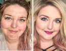 Before and After Acne Prone Skin